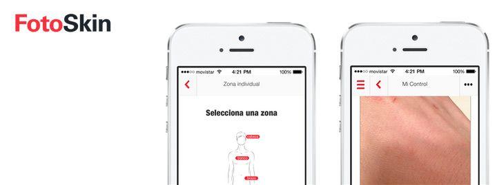 FotoSkin, app gratuita que ayuda al diagnóstico precoz del cáncer de piel